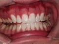 Patient 2 - After