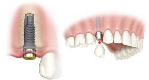 dental-implant-beverly-hills