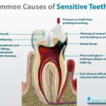 Is Sensitive Teeth A Daily Issue For You?